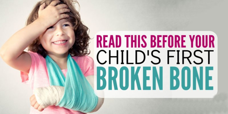 What to do when your kid breaks his arm or leg? This post is a lifesaver and I am so glad I found this parenting advice! I had no idea I may not need to take my child to an emergency room. Great parenting tips